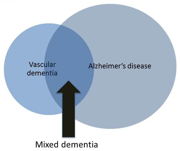 Overlapping circles: left, smaller, labeled Vascular dementia; right, larger, labeled Alzheimer's disease; center area labeled Mixed dementia