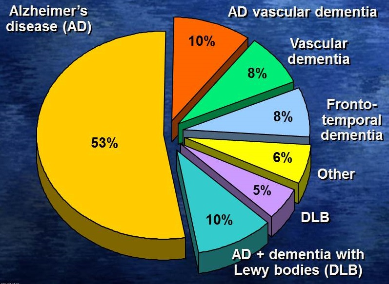 Pie Chart: Alzheimer's Disease (53%), AD vascular dementia (10%), Vascular dementia (8%), Frontotemporal dementia (8%), Other (6%), DLB (5%), AD+ dementia with DLB (10%).