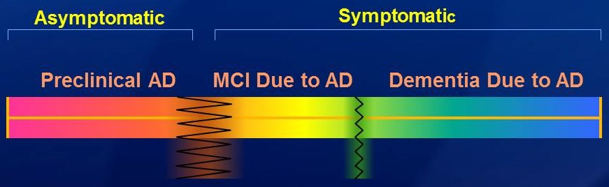 Brain wave diagrams: Asymptomatic (Preclinical AD) - Symptomatic (MCI Due to AD and Dementia Due to AD).
