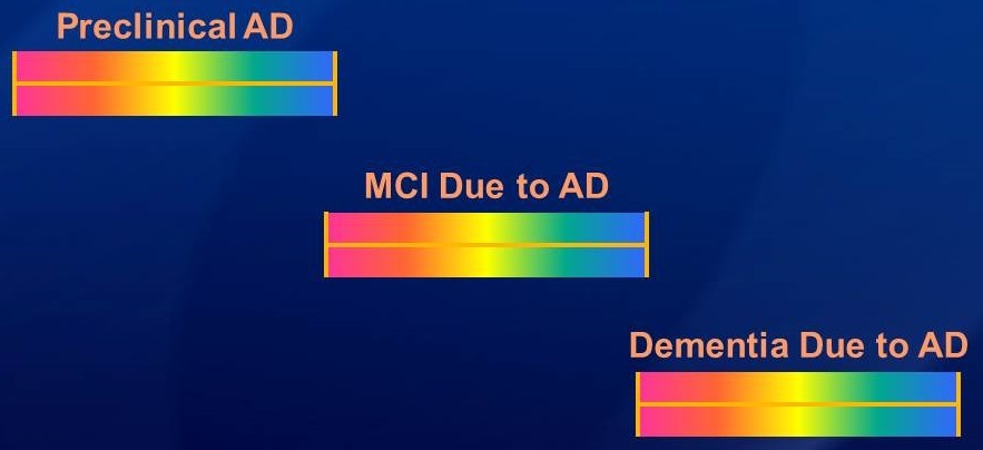 Brain wave diagrams: Preclinical AD, MCI Due to AD, and Dementia Due to AD.