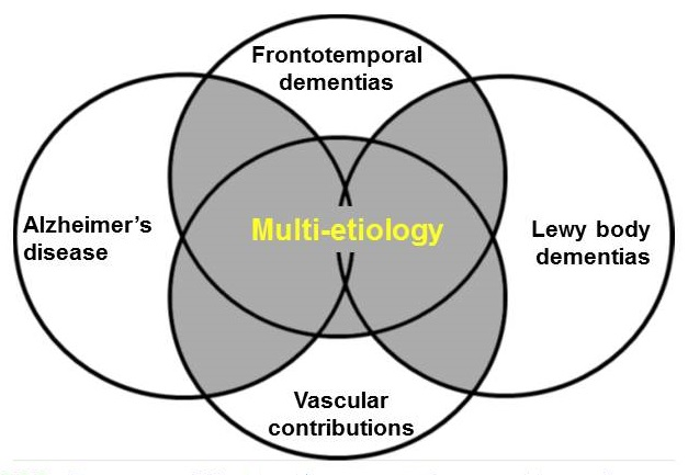 Overlapping diagram showing the intersection of Frontotemporal dementias, Alzheimer's disease, Vascular contributions and Lewy body dementias.