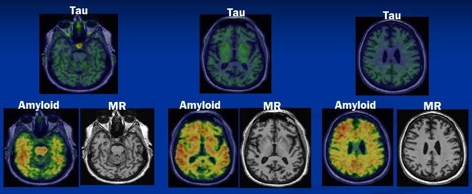 Screen Shots of Brain Tau, Amyloid and MR scans.