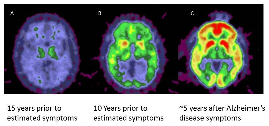 Screen shot of several brain scans: 15 and 10 years prior to symptoms, and 5 years after AD symptoms.