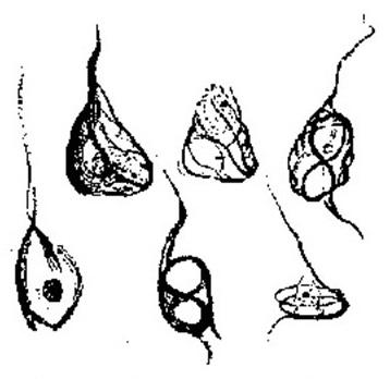 Illustration of Alzheimer's tangles.