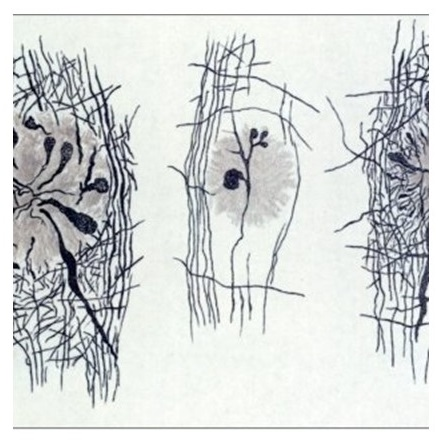 Illustration of Alzheimer's plaques.