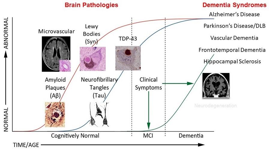 Illustration of Alzheimer's progression.